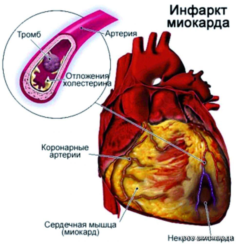 инфаркт лица фото